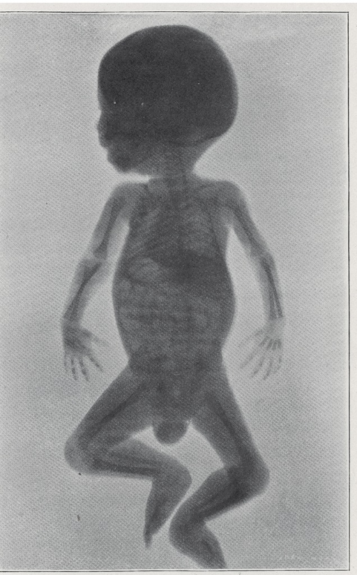 <p>Properly exposed X-ray plates captured clear outlines of the skeleton and also softer tissues, such as the skin, muscles, tendons, and even veins and arteries. But many of the finer details could be lost in the transfer to print. This figure displays the first-ever outline of an infant's liver, within its natural surroundings of flesh and bones. The X-Ray, fig. 59.</p>