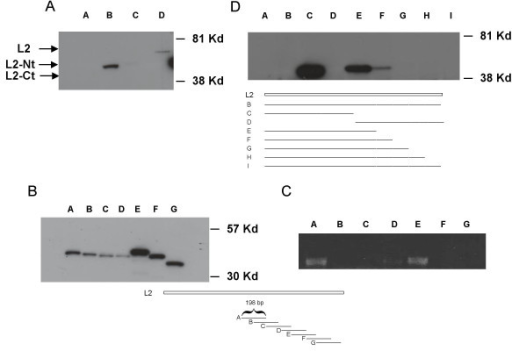 Western analysis of HPV 31 L2. Cos-7 cells were transfected with GFP tagged L2 in pcDNA 3.1(-) expression vectors. After 72 hours, lysates were harvested and analyzed by Western blot with an antibody to GFP. (Panel A). Lane A: wild type HPV 31 L2. Lane B: wild type HPV 31 L2 N-terminus. Lane C: wild type HPV 31 L2 C-terminus. Lane D: codon optimized HPV 31 L2. (Panel B). Western analysis of transfections of GFP in frame fusions to 198 base pair fragments of the C-terminal domain of wild type L2. Each fragment overlapped with the adjacent fragment by 99 base pairs. Cell extracts were examined by Western analysis using a GFP antibody. Lane A: fragment A, GFP fusion to nucleotides 4771–4969. Lane B: fragment Bnucleotides 4870–5068. Lane C: fragment C, nucleotides4969–5167. Lane D: fragment D, nucleotides5068–5266. Lane E: fragment E, nucleotides5167–5365. Lane F: fragment F nucleotides 5266–5464. Lane G: fragment G, nucleotides5365–5568. (Panel C). RT-PCR analysis of RNAs isolated from cells transfected with plasmids shown in panel B. Primers to common GFP sequences were used in this analysis. (Panel D) Lane A: mock transfected cells. Lane B: complete wild type HPV 31 L2 fused to GFP nucleotides 4171–5568. Lane C: N-terminal domain wild type L2 (nucleotides 4171–4870) fusion to GFP. Lane D: C-terminal domain wild type L2 (nucleotides 4870–5568) fused to GFP. Lane E: N-terminal domain wild type L2 (nucleotides 4171–4969) fused to GFP. Lane F: N-terminal domain wild type L2 (nucleotides 4171–5068) fused to GFP. Lane G: N-terminal domain wild type L2 (nucleotides 4171–5166) fused to GFP. Lane H: N-terminal domain wild type L2 (nucleotides 4171–5265). Lane I: N-terminal domain wild type L2 (nucleotides 4171–5465). Cartoon identifies fragments of L2 fused to GFP examined in lanesE – I. Nucleotide numbers are those in HPV 31 genome.