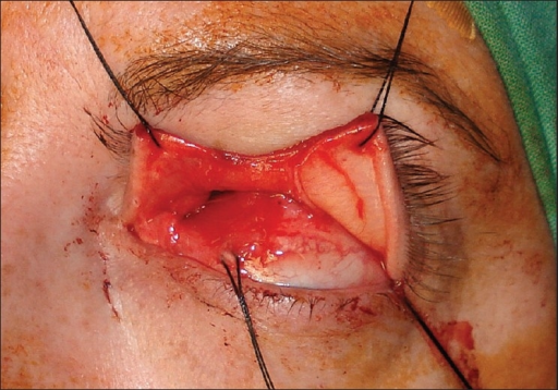Intraoperative photograph showing vertical split at the junction of the medial and central thirds of the upper lid