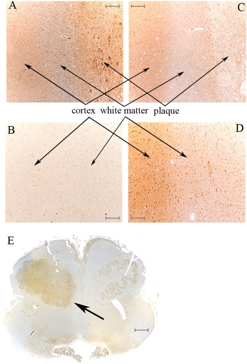 LMP2 subunit is accumulated in MS plaques.(A) Cortex, white matter and plaque of MS parietal lobe stained with anti-LMP2 Ab; an increase of cells expressing LMP2 in the plaque emerges. (B) In control parietal lobe, cortex and white matter marked with anti-LMP2 Ab show a detectable staining only in luminal endothelial cells. The labeling with anti-β1 Ab of the same MS (C) and control (D) brain area do not show any difference neither between MS and control nor between grey and white matters. (E) Rostral medulla, with MS plaque into inferior olivar nucleus (arrow), stained with anti-LMP2 Ab, which mainly binds the MS plaque. The representative samples here reported derived from gender- and age-matched MS and control samples. A-D scale bars = 300 µm; E scale bar = 3 mm.