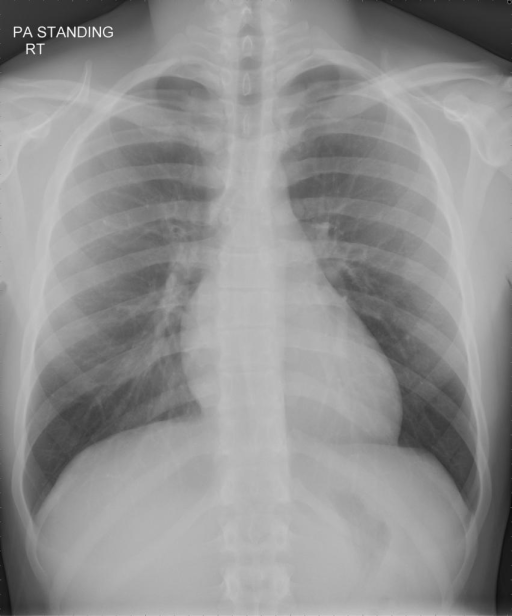TWO-VIEW CHEST (AP/PA and lateral): XXXX.