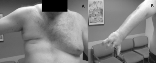 a study on the congenital condition known as polands syndrome A congenital condition called the poland sequence, characterized by ipsilateral hand malformations and by partial or complete absence of the pectoralis muscles and breast,occurs with möbius syndrome in approximately 15% of patients.