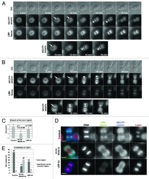 Figure 5. The depletion of the LBR does not inhibit focusing of emerin and Lap2α at the core region. Live imaging was performed with cells stably expressing LBR-Venus/SECFP-emerin, like described in Figure 1. (A) Untreated cells (control). (B) Cells depleted of LBR by RNAi for 48 h (LBR kd). Arrowheads show SECFP-emerin accumulating at the core region, and arrows show initial targeting of SECFP-emerin to the chromosomes. Scale bars = 10 µm. (C) The duration time of SECFP-emerin at the core region as observed in live imaging in Figures 1A and B, 5A and B (n = 24 for the control, n = 15 for the ELYS/Mel28 kd, n = 10 for the LBR kd). (D) Endogenous Lap2α was examined by IF staining in HeLa cells stably expressing LBR-Venus/SECFP-emerin depleted of ELYS/Mel28 as in Figure 1B, or depleted of LBR as in Figure 5B. Scale bars = 10 µm. (E) Quantification results of D are shown. Control cells (n = 40), ELYS/Mel28 kd (n = 39) and LBR kd cells (n = 25).