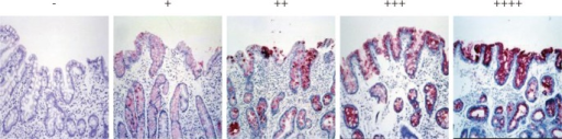 Examples of MUC5AC expression as determined by immunohistochemistry (×200).