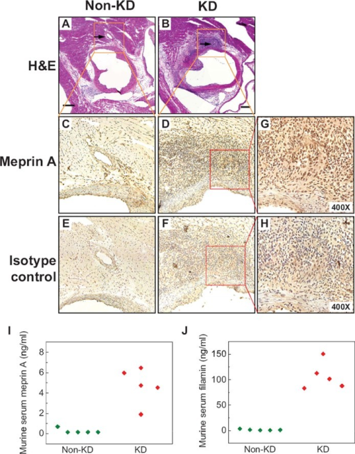 Meprin A is enriched in coronary artery lesions in a mouse model of Kawasaki diseaseA,B. Micrographs of hematoxylin and eosin-stained sections of the aortic root and coronary arteries of control (A) and LCWE-injected mice (B) demonstrating severe aortitis with intimal proliferation leading to concentric obstruction in the LCWE-injected but not control animals. Arrows point to the normal (A) and diseased (B) coronary arteries.C,D. Micrographs of meprin A immunohistochemistry-stained inset areas of the sections of coronary arteries demonstrating enrichment of meprin A in the mononuclear infiltrates of coronary arteries in LCWE-injected (D) but not control (C) animals.E,F. Micrographs of isotype control-stained sections of coronary arteries in LCWE-injected (F) and control (E) mice.G,H. High-magnification micrographs of the inset areas of meprin A (G) and isotype control-strained (H) sections of the coronary arteries in LCWE-injected mice.I,J. Serum levels of meprin A (I) and filamin (J) are elevated in the LCWE-injected (red) as compared to control (green) mice. Scale bar is 250 µM.