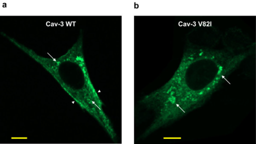 Immonolocalization of Cav-3 WT and Cav-3 V82I. BHK cells were transiently transfected with Cav-3 WT (a) or Cav-3 V82I (b) and immunostained with the antibodies against caveolin-3 followed by Alexa Fluor 488 conjugated secondary antibodies. Cav-3 V82I mutant was retained intracellularly and not properly targeted to the plasma membrane as Cav-3 WT (arrowheads). Vesicular-like structures (LB) stained with the caveolin-3 antibodies were also observed, especially for Cav-3 V82I mutant (arrows); Scale bar: 10 μm. Four independent transfected cultures were analyzed.