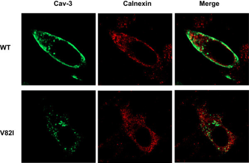 Colocalization analysis of Cav-3 WT and Cav-3 V82I with the ER marker calnexin. BHK cells were transiently transfected with Cav-3 WT (top) or Cav-3 V82I (bottom) and subjected to double labelling with antibodies raised against caveolin-3 (green) and calnexin (red). As shown in the merged images, no significant colocalization with calnexin was observed for both wilt-type and mutated caveolin-3 proteins. Data are representative of three independent cultures.