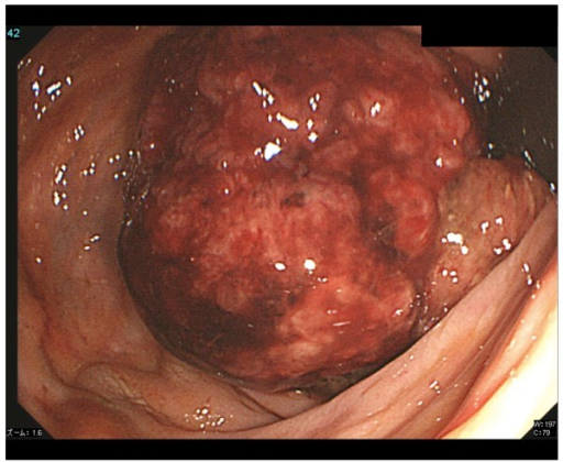Colonoscopic image shows a rectal polyp, 4 cm in diameter.