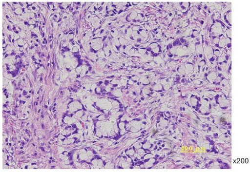 Histological image of a postoperative specimen shows a mucinous adenocarcinoma with signet ring cell carcinoma. (×200, H & E stain).