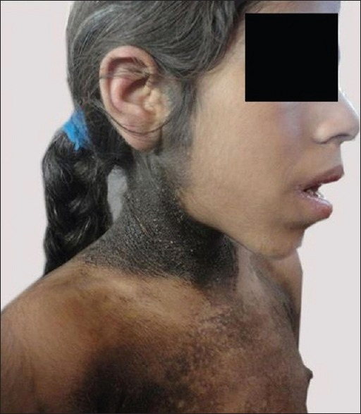 Acanthosis Nigricans Seen Extending Beyond The Neck Open I