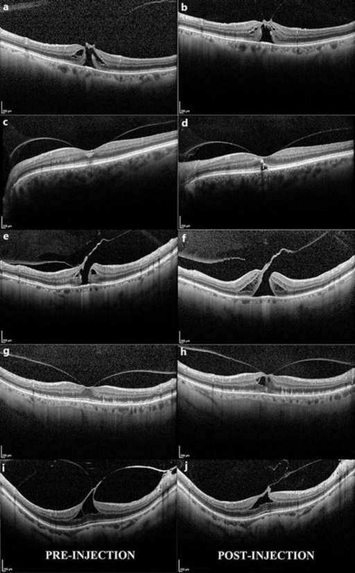 a, b Patient No. 1. a FTMH with a focal VMT, mild retinal schisis and intraretinal cysts. b One month after ocriplasmin: persistent FTMH and VMT. The schisis and intraretinal cystoid changes appear less pronounced. c, d Patient No. 2. c A very broad VMA with ill-defined intraretinal hyperreflective spots at the fovea center. d One month after ocriplasmin: persistent broad VMA, intraretinal hyperreflective spots, and new small amount of subretinal fluid at the fovea center. e, f Patient No. 5. e FTMH with focal VMT and small intraretinal cysts. f One month after ocriplasmin: slightly larger FTMH, persistent focal VMT and larger intraretinal cysts. g, h Patient No. 6. g Focal VMA with several small drusen. h One month after ocriplasmin: persistent focal VMA and drusen with new intraretinal cystoid changes. i, j Patient No. 7. i Focal VMT with inner intraretinal cystoid changes. j Persistent thin thread of vitreous remains attached to the foveal retinal interface and with smaller intraretinal cystoid changes.