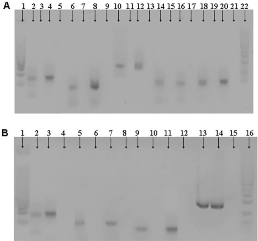 Profile of cytokine expression. RT-PCR assays were used for thequantification of mRNA encoding for IL-2, IL-4, IL-6, IL-10, IL-12p35 (3A). 1 =Molecular weight markers (50pb), 2-5 = IL-2 (2: sample positive, 3: samplenegative, 4: positive control and 5: negative control), 6-9 = IL-4 (6: samplepositive, 7: sample negative, 8: positive control and 9: negative control),10-13 = IL6 (10: sample positive, 11: sample negative, 12: positive control and13: negative control), 14-17 = IL-10 (14: sample positive, 15: sample negative,16: control positive and 17: control negative), 18-21 = IL-12 (18: samplepositive, 19: sample negative, 20: control positive and 21: control negative),22 = Molecular weight markers (100pb). RT-PCR assays were also used for thequantification of mRNA encoding for IFN-γ, TNF-α, TGF-β and β-actin (3B). 1:Molecular weight markers (50pb), 2-4 = IFN-γ, (2: sample positive, 3: controlpositive and 4: control negative), 5-8 = TNF-α (5: sample positive, 6: samplenegative, 7: control positive and 8: control negative), 9-12 = TGF-β (9: samplepositive, 10: sample negative, 11: control positive and 12: control negative),13-15 = β-actin (13: sample positive, 14: control positive and 15: controlnegative), 16 = Molecular weight markers (100pb).