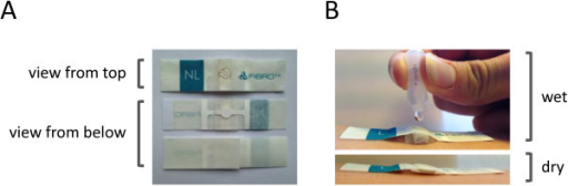 The Transdermal Analyses Patch (TAP). Panel A: TAP consists of a plaster with a nitrocellulose core that contains the capture antibody micro-array, which is clearly visible in the middle. Panel B: In the lower photo, TAP has been fixed to skin. In the upper photo, it is clearly visible that the layer in between the micro-array and the adhesive layer expands upon contact with fluid. This layer serves as a reservoir for the buffer used for biomarker extraction from skin, as well as to ensure close contact between capture antibody micro-array and skin during extraction.
