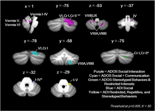 Cerebellar regions in which reduced GM correlated with ADOS and ADI scores. **Largest and most significant cluster in the brain (k = 2173, T = 4.61); *k = 49.
