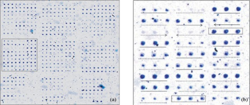 (a). Magnified view of a scanned microarray (13.5 x 13.5 mm) hybridized to wild-type human genomic DNA sample [inset is shown in Fig. 2(b)]. 2(b). A portion of the array wherein, the spots corresponding to wild-type and mutant and probes are shown as underlined with solid or dashed lines, respectively. Perfect match (PM) probes are underlined by a continuous line while the adjoining mismatch (MM) probes are underlined by dotted lines. The forward and reverse complement probes and their corresponding mutant probes are indicated by arrows. Spot triples shown in boxed region correspond to exon-specific positive control probes.