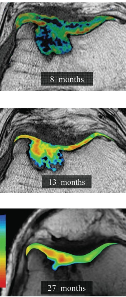 Axial quantitative T2 mapping of a trochlear TruFit bone graft substitute plug at 8 months, 13 months, and 27 months postoperatively. T2 relaxation times (milliseconds) for the superficial and deep cartilage layers of the central and peripheral plug demonstrated significant shortening with increasing duration after surgery (P < 0.004). These values approached but always remained prolonged compared with those of normal articular cartilage by final follow-up evaluation.Note: Image adapted with permission from Potter HG, Chong LR, Sneag DB. Magnetic resonance imaging of cartilage repair. Sports Med Arthrosc Rev. 2008 Dec 16(4):236-45.