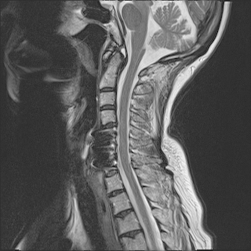 T2-weighted sagittal magnetic resonance imaging performed 6 months postoperatively after patient presented with recurrent symptoms. Note that no persistent and/or recurrent stenosis apparent at the C5–C6, C6–C7 level.