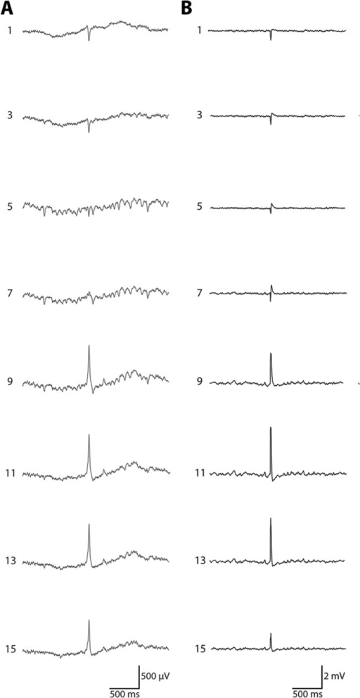Simultaneous recoding of field activity in the CA1-dentate gyrus axis of dorsal hippocampus.For simplicity, every other trace is shown (16 total recording sites, 100 μm contact intervals). A) A typical dentate spike was depicted in the traces shown, characterized by a large amplitude, highly contoured event with a positive going waveform in the dentate gyrus. The CA1 pyramidal cell layer was located near trace 3 and the dentate granule cell layer was located near trace 9. B) An example recording depicting a characteristic response to a angular bundle stimulation. The silicon probe was located in a similar orientation to the recording shown in panel A. The CA1 pyramidal cell layer was located near trace 3 and the dentate granule cell layer was located between traces 9 and 11.