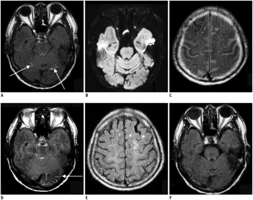 87-year-old man with right lower extremity weakness.A. Initial brain MRI shows focal linear contrast enhancement at both of inferior occipital sulci (arrows) on postcontrast FLAIR image, which is early hyperintense acute reperfusion marker sign. B. There is no evidence of acute infarction on diffusion-weighted image. C, D. Contrast is still present in cerebrospinal fluid space from previous images performed 23 hours prior on first follow-up FLAIR images, which is feature of classic HARM. E, F. Second follow-up MRI obtained 48 h after initial MRI shows no contrast present on FLAIR images. FLAIR = fluid attenuated inversion recovery