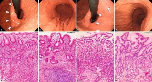 Relationship between endoscopic and histological findings. Endoscopic findings before (a, b) and 7 years after eradication (c, d) (white arrows: atrophic border) showed atrophy improvement. Histological findings at the corpus (e) and antrum (f) before eradication showed improvement at the corpus (g) and antrum (h) after eradication.