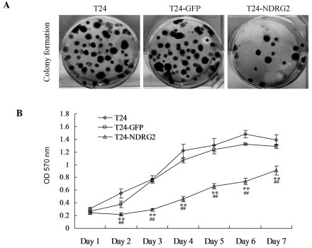 Overexpression of NDRG2 inhibits the growth of T24 cells. (A) Colony formation assay for proliferation in T24, T24-GFP and T24-NDRG2 cells following 2 weeks of culture. (B) An MTT assay was performed in order to quantify cell proliferation at day 1, 2, 3, 4, 5, 6 and 7 following transfection. Values are presented as the mean ± standard deviation. **P<0.01 vs. T24; ##P<0.01 vs. T24-GFP. NDRG2, N-Myc dowstream-regulated gene 2; T24-GFP, control green fluorescent protein adenovirus-infected T24 cells; T24-NDRG2, GFP-NDRG2 adenovirus-infected T24 cells.