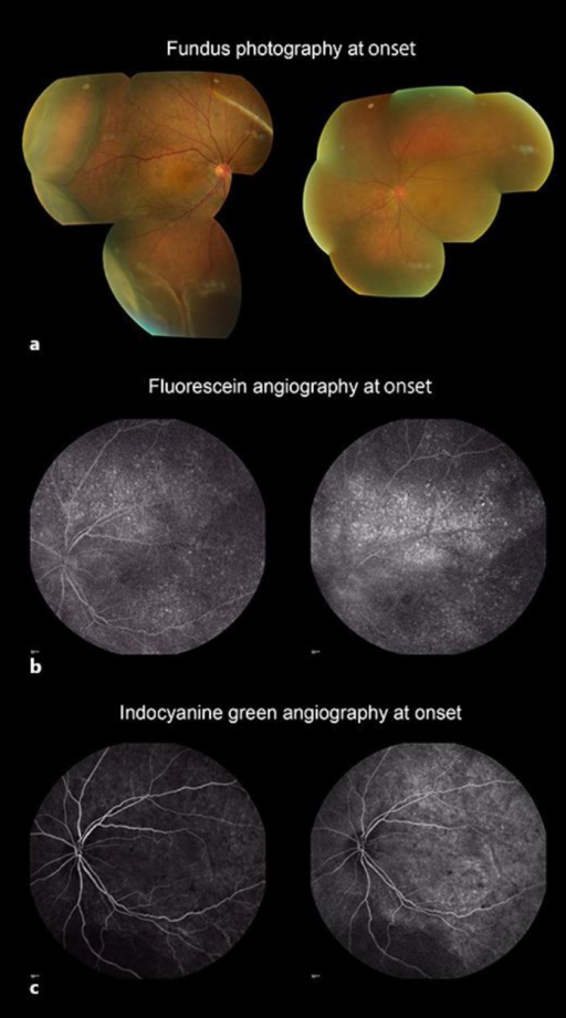 Fundus photographs, fluorescein angiograms, and indocyanine green angiograms of a case with VKH disease who developed MH. a Fundus photography at presentation showed circumferential choroidal detachments at the periphery, multiple serous retinal detachments, hyperemia and edema of the optic disc in both eyes. Fluorescein angiography (b) and indocyanine green angiography (c) detected multiple serous retinal detachments and inflammatory changes at the choroidal level. Images obtained at the early phase are shown on the left side and those obtained at the late phase are shown on the right.