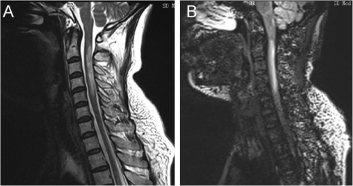 (A) T2WI spinal cord shows swelling, necrosis and cavity lesion, involving the gray and white matter of the central site, transversely, and the average length of the lesion was 4.7±0.6 centrum. (B) DIR shows higher signal. Lesions of MS patients were located in the peripheral spinal cord and the average length of the lesion was 0.9±0.2 centrum. DIR, double inversion recovery; MS, multiple sclerosis.