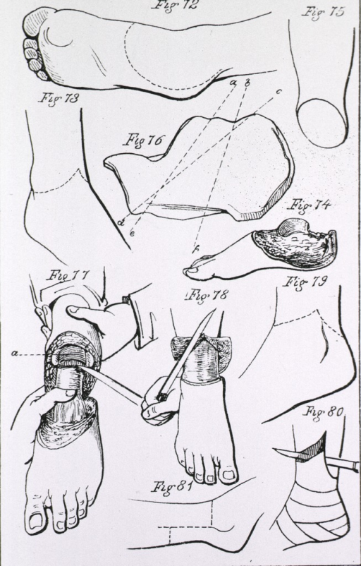 <p>Step by step procedure for amputation of the foot.</p>