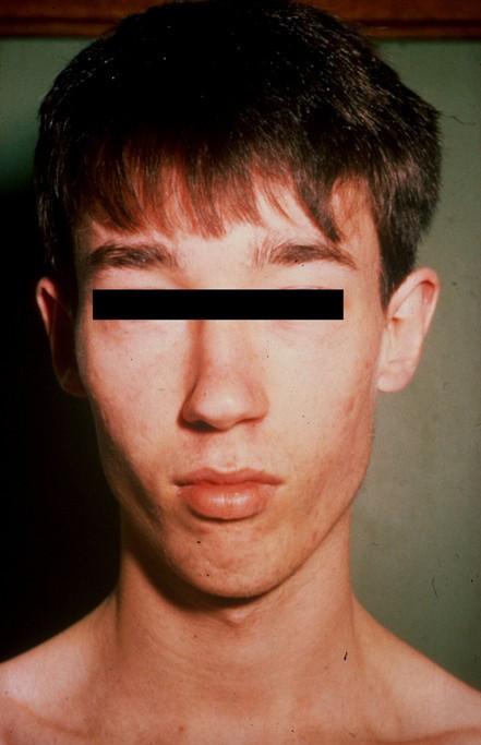 Figure 1:Lujan-Fryns syndrome (mental retardation, X ...