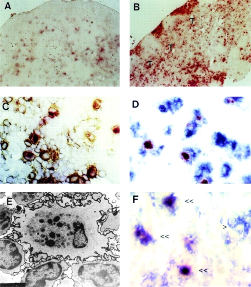 Cells with the characteristics of OX41−NSE+ L-DCs are present in PP and MLNs but not other nodes. (A) Cryosection of CLN reacted for NSE. Weakly positive cells are present, particularly in the follicles. (B) Cryosection of MLN reacted for NSE. Large numbers of large, irregular, strongly positive cells are present in the subcapsular sinus, interfollicular traffic areas, and the paracortical T cell area (T). (C) Cryosection of MLN reacted for NSE and labeled for MHC class II. The paracortex contains large numbers of large, irregular cells positive for both markers. (D) Cryosection of MLN labeled for NSE and OX62. The paracortex contains large numbers of large irregular cells positive for both markers. (E) Electron micrograph of MLN labeled for MHC class II. An MHC class II+ interdigitating cell in the paracortex contains large, dense cytoplasmic inclusions, similar to those seen in L-DCs. (F) Cryosection of PP labeled for NSE (red) and CD11c (blue). Several double-positive cells (<<) and one CD11c+NSE− cell (>) is present in the T cell area of the patch.