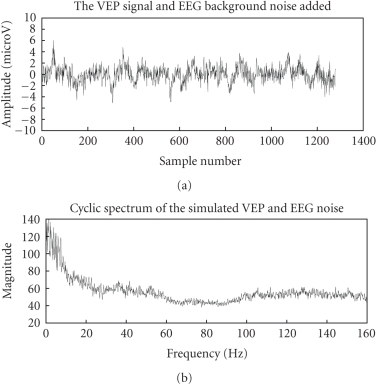 VEP withbackground EEG noise and its cyclic spectrum.