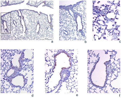 Photomicrographs of COX-2 immunolabeling in lung samples from HDM-sensitized mice following different treatments. Pictures a, b, and c show representative images of the COX-2 immunostaining pattern in the airways. Since the COX-2 distribution was almost the same in all 4 experimental groups, only representative images of one of them are included. 3 (a) shows a general view of COX-2 distribution in the airways, where labeling is detected in the bronchiolar epithelium but not in the principal airway. 3 (b) shows a single bronchiole (magnified view of the area outlined in [a]), and 3 (c) shows stained alveolar macrophages. Pictures d, e, and f reflect the consistent changes in the COX-2 antigen signal intensity under different experimental conditions. 3 (d) shows a single bronchiole from a non-sensitized mouse, 3 (e) A single bronchiole from a sensitized mouse treated with control mismatched oligonucleotides (MM), and 3 (f) COX-2 protein expression in the airways after treatment with the COX-2 antisense oligonucleotide (ASO). Similar staining intensity was seen in untreated sensitized mice, in which cells were heterogeneously labeled and peribronchial and perivascular inflammation was observed, but the immunostaining signal diminished clearly and consistently in the treatment group.