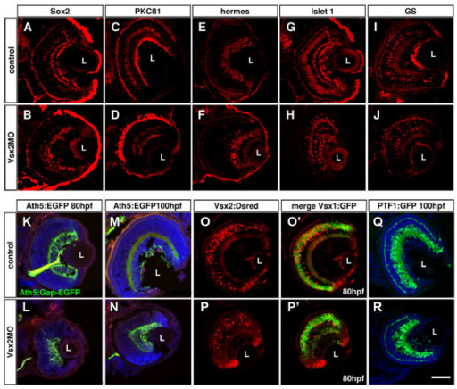 Loss of Vsx2 allows various cell types to develop in the retina. (A-J) Cryosections of 80 hours post-fertilization (hpf) retinas labelled with different cell-specific markers show that Vsx2 morphant retinas have all cell types present: Sox2 labels amacrine and Müller cells (A, B); protein kinase C (PKC)β1 labels some bipolar cells (C, D); Hermes labels ganglion cells (E, F); Islet 1 labels horizontal, bipolar, some amacrine and ganglion cells (G, H); glutamine synthetase (GS) labels Müller cells (I, J). (K-T)Cryostat sections of 80 hpf transgenic retinas similarly reveal presence of all marked cell types in Vsx2 morphants. (K-N) Vsx2 morphant Tg(ath5:Gap-GFP) retinas (double labelled with the ganglion cell marker Zn5 in red) still have green fluorescent protein (GFP)- and Zn5-labelled ganglion cells and form an optic nerve to the tectum. (O-R) Vsx2 morphant double transgenic Tg(vsx1:GFP-vsx2:dsRed) have both GFP- and DsRed-labelled cells, but appear to have comparatively fewer Vsx2:DsRed cells. As in the control transgenics, Vsx1:GFP and Vsx2:DsRed do not co-localise in the same cells. (S, T) Vsx2 morphant Tg(ptf1a:GFP) retinas show GFP labelling for horizontal and amacrine similar to that in controls, although some GFP cells are displaced and can be found closer to the lens in the GCL of the morphant retinas. L, lens. Scale bar: (A-T) 47 μm.