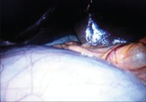 Intraoperative image shows the large cyst close to the stomach