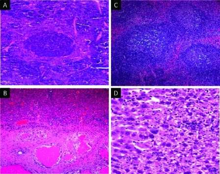 (A) Reactive follicular hyperplasia detected in a mouse spleen 4 days after infection with P. berghei. Large germinal centers are shown, formed of immune- and centroblasts. Red pulp congestion was further indicated by abundant hemozoin in cordal macrophages; (B) liver tissue sections from a F. hepatica-infected rat showing typical cavity-like necrotic tunnels that were demarked by a foreign body reaction (100×); (C) lymphofollicular hyperplasia was detected in the spleen of S. mansoni-infected mice and indicated by prominent germinal centers including tangible body macrophages; (D) hepatic hemopoiesis after infection with T. b. brucei.