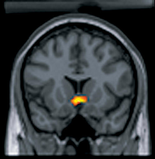 Rewarding the BrainThe ventral midbrain is active when humans receive an unpredictable juice reward. Monetary rewards, although defined by cultural agreement, also engage the same subcortical reward processing structures. (fMRI image courtesy of P. Read Montague.)
