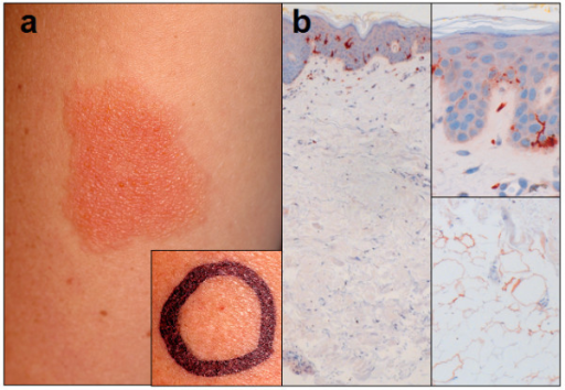 Clinical findings in delayed-type allergy against local anesthetics and histological picture of skin compartments showing the distribution of S-100 positive dendritic cells. a Delayed-type hypersensitivity reaction 4 days after superficial subcutaneous provocation with prilocaine (1 ml). Inlet Negative result after deep s.c. injection of prilocaine after 4 days. b Differential density of DCs in different skin compartments. Immunohistochemistry with staining of S-100 antigen. Left Overview of the skin layers with declining density of S-100 positive antigen-presenting cells from epidermis to subcutaneous tissue. Magnification 4 ×. Upper right High density of epidermal dendritic cells (Langerhans cells) in epidermis, papillary dermis and reticular dermis. Magnification 40 ×. Lower right In deeper subcutaneous compartments, dermal interstitial S-100 positive DCs are not detectable. Magnification 40 ×.
