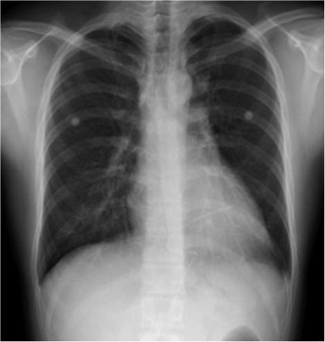 On day 10, a chest X-ray showed the regression of pericardial air after conservative treatment.