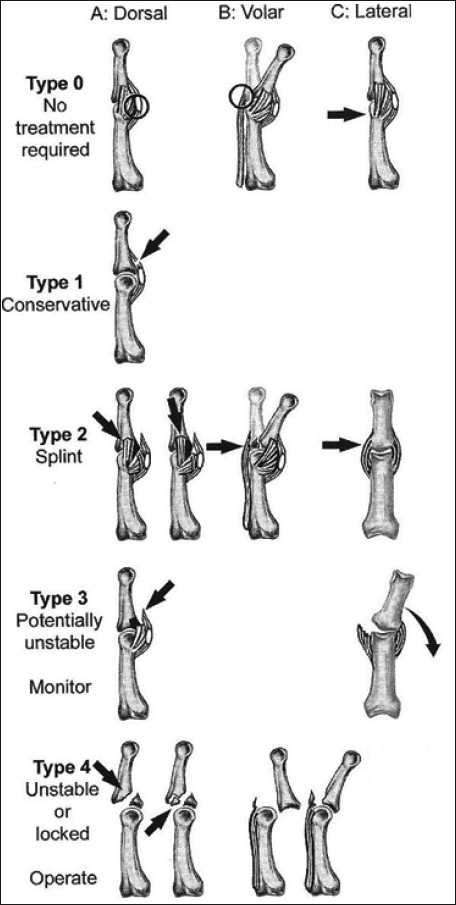 Schematic diagram showing classification of fracture di | Open-i