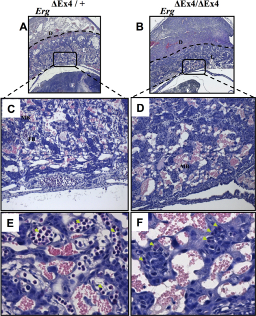 Placental vascular defects in ErgΔEx4/ΔEx4 embryos at E10. (A,B) The dashed lines in Erg+/+ (A) and ErgΔEx4/ΔEx4 (B) indicate the extent of decidual invasion in each placental section. (C,D) Magnification of the boxed areas in A and B. Well-defined vasculature is observed in Erg+/+ placentas (C), whereas the mutants, although they have abundant maternal blood sinuses, lack well-defined fetal-derived capillaries (D). (E,F) Higher magnification of C and D reveal abundant nucleated fetal blood in the controls (arrows, E), whereas the mutants show a drastic reduction in the number of fetal blood cells and exhibit collapsed capillaries (arrows, F). D, maternal decidua; L, labyrinth; E, embryo; MB, maternal blood; EB, embryonic blood.