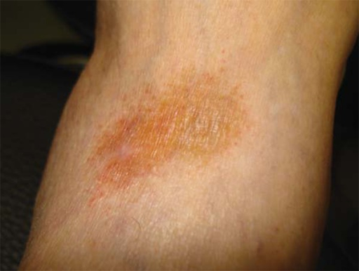 Unilateral golden-brown macule on left ankle. Presence of purpuric dots within thelesion