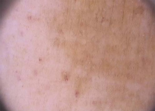 Dermoscopy findings. Coppery-red pigmentation on backgraund, permeated by darkbrown network