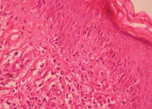 Histopathology showing vacuolization of the basal layer of epidermis, lichenoidinfiltrate in the dermis and extravasation of red blood cells