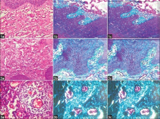 (1a) Photomicrograph of normal buccal mucosa (H&E stain, ×400), (1b) Photomicrograph of normal buccal mucosa (Masson's trichrome stain, ×400), (1c) Normal buccal mucosal image analyzed by morphometry (Masson's trichrome stain, ×400). (2a) Photomicrograph of leukoplakia sections (H&E stain, ×400), (2b) Photomicrograph of leukoplakia sections (Masson's trichrome, ×400), (2c) Image of Leukoplakia analyzed by morphometry. (Masson's trichrome, ×400). (3a) Photomicrograph of moderately differentiated squamous cell carcinoma (H&E stain, ×400), (3b) Photomicrograh of moderately differentiated squamous cell carcinoma (Masson's trichrome stain, ×400), (3c) Image of moderately differentiated squamous cell carcinoma analyzed by morphometry (Masson's trichrome stain, ×400)