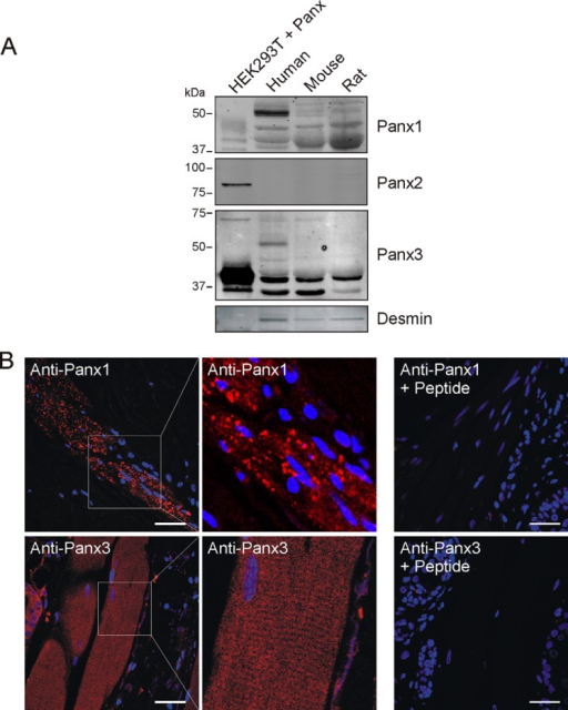 Panx1 and Panx3 are expressed in the skeletal muscle tissue.A, expression of Panx1, Panx2, and Panx3 proteins in adult human, mouse, and rat skeletal muscle whole tissue lysates was analyzed by Western blotting. Various molecular weight species of Panx1 and Panx3 were expressed, whereas Panx2 was absent or below detectable levels. HEK293T cells transfected with Panx1, Panx2, or Panx3 were used as positive controls. Desmin is a muscle-specific protein. B, human skeletal muscle tissue in skin samples was labeled for Panx1 (labeled in red) and Panx3 (labeled in red). Representative images are shown. Panx1 was detected as a punctate stain, whereas Panx3 was observed as diffuse labeling. Higher magnification micrographs of Panx3 labeling show a striated pattern. Peptide competition revealed loss of specific staining. Blue = nuclei; bars = 50 μm.