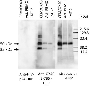 Western blot analysis of OX40. OX40-expressing CEM cells (CEM/OX40), in vitro activated PBMCs and MT-2 cells were cell-surface labeled with biotin, lysed and immunoprecipitated with anti-OX40 (B-7B5). The precipitates were subjected to 10% PAGE and blotted onto nitrocellulose sheets. The sheets were then probed with HRP-labeled anti-HIV-1 p24 (as a control), anti-OX40 (B-7B5) or streptavidin. Mol. Wt. markers are shown on the right. Data shown are representative of 3 independent experiments.