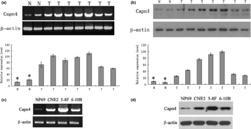 Capn4 expression in nasopharyngeal carcinoma (NPC)biopsy tissues and cell lines. (a) mRNA levels of Capn4 in tumor tissues from seven patients with NPC and two normal tissues were determined by RT-PCR. The results were normalized against mRNA levels of β-actin in each sample. N, normal tissues; T, tumor tissues. (b) Western blot analysis on Capn4 expression was performed in NPC tumor tissue samples and normal tissues. Total proteins were extracted from tissues and subjected to immunoblotting probed by antibodies against Capn4. β-actin was probed as control. (c, d) Capn4 mRNA and protein levels were monitored in the NPC cell lines (5-8F, CNE2, and 6-10B) and the immortalized human nasopharyngeal epithelial cell line NP69, respectively. *P < 0.05.