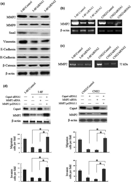 Matrix metalloproteinase 2 (MMP2) functionally contributes to Capn4-mediated nasopharyngeal carcinoma (NPC) cell migration and invasion. (a) Western blot analysis was performed to monitor protein levels of genes associated with cell migration and invasion in Capn4 siRNA and control siRNA 5-8F cells. (b) mRNA levels of MMP2 were determined by RT-PCR analysis in Capn4 siRNA and control siRNA cells. (c) MMP2 enzyme activity was measured by gelatin zymography in Capn4 siRNA and control siRNA cells. (d) 5-8F and CNE2 cells were transfected with constructs encoding Capn4 or MMP2 siRNA, or full-length MMP2, respectively. Western blot analysis was then performed to monitor knockdown or overexpression of target genes. Data is presented as means ± SD for three independent experiments (*P < 0.05).