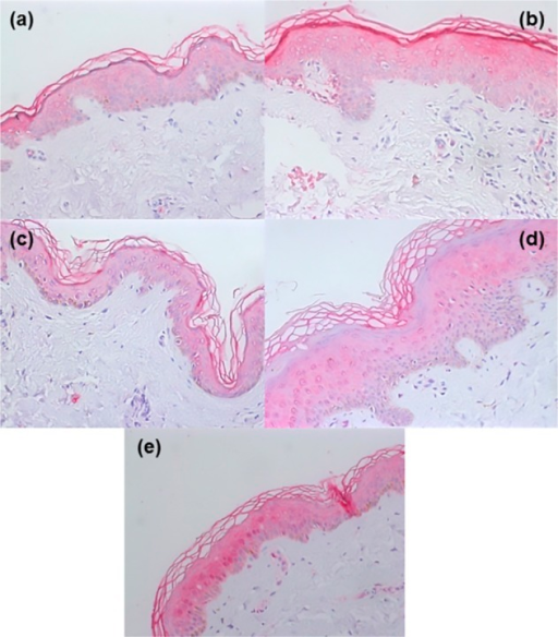 TLR2 expression in unaffected (a) and affected(b) epidermis from an individual with localized dermatophytosisand in unaffected (c) and affected (d) epidermis froman individual with disseminated dermatophytosis. (e) shows TLR2expression in the epidermis of a healthy individual. Magnification:x200