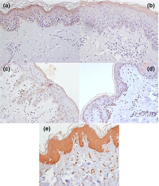 TLR4 expression in unaffected (a) and affected(b) epidermis from an individual with localized dermatophytosisand in unaffected (c) and affected (d) epidermis froman individual with disseminated dermatophytosis. (e) shows TLR4expression in the epidermis of a healthy individual. Magnification:x200